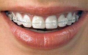 6 Foods That are Bad for your Teeth